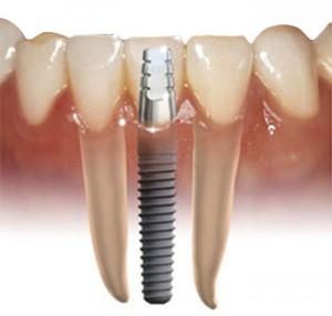 implantas-a