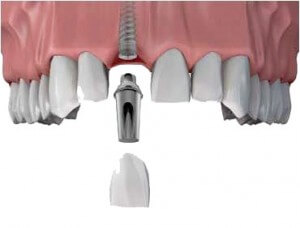 implanto-dalis