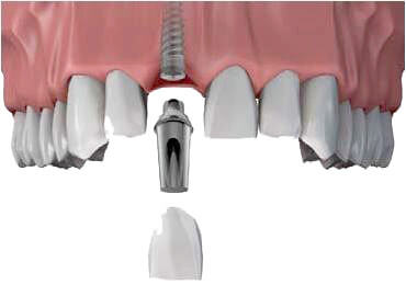 Danties implanto dalis